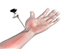Wrist Arthroscopy